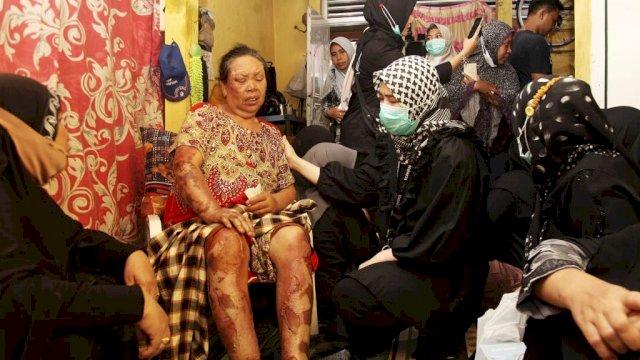 Istri Fadli Ananda Bantu Perawatan Korban Kebakaran Rappokalling